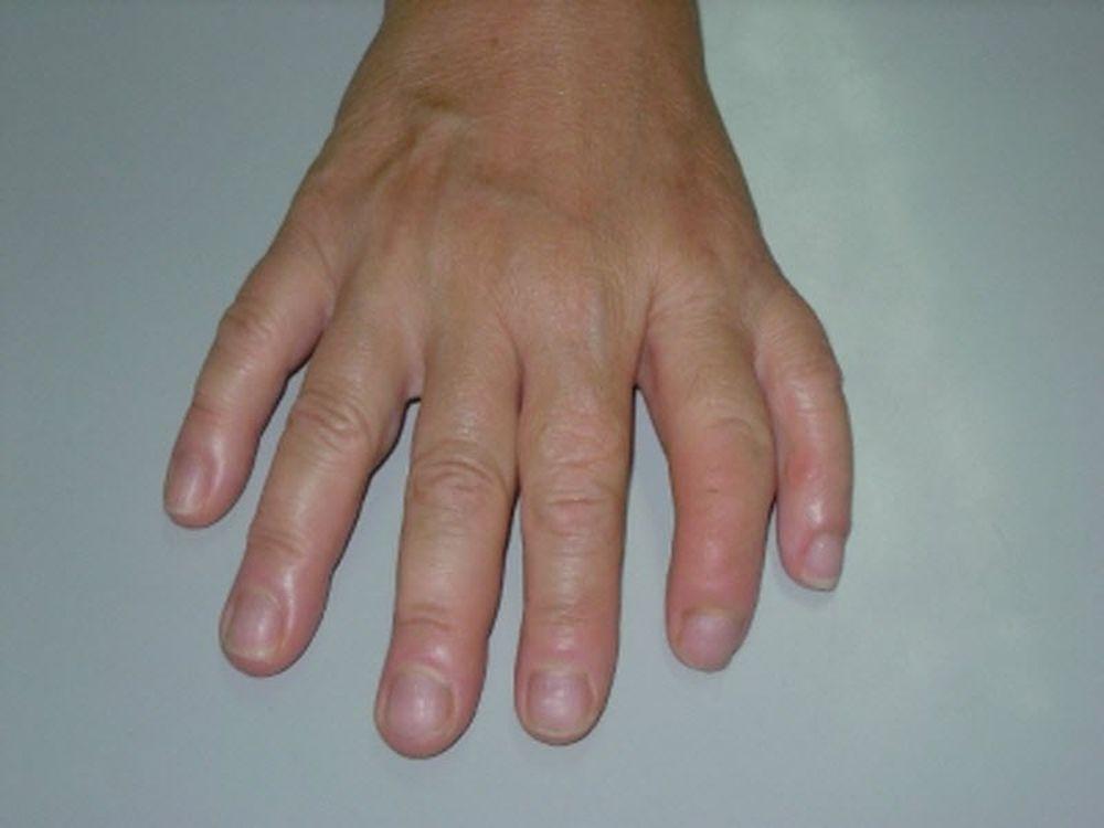 Το ποδόσφαιρo… χέρι άκρας υγείας
