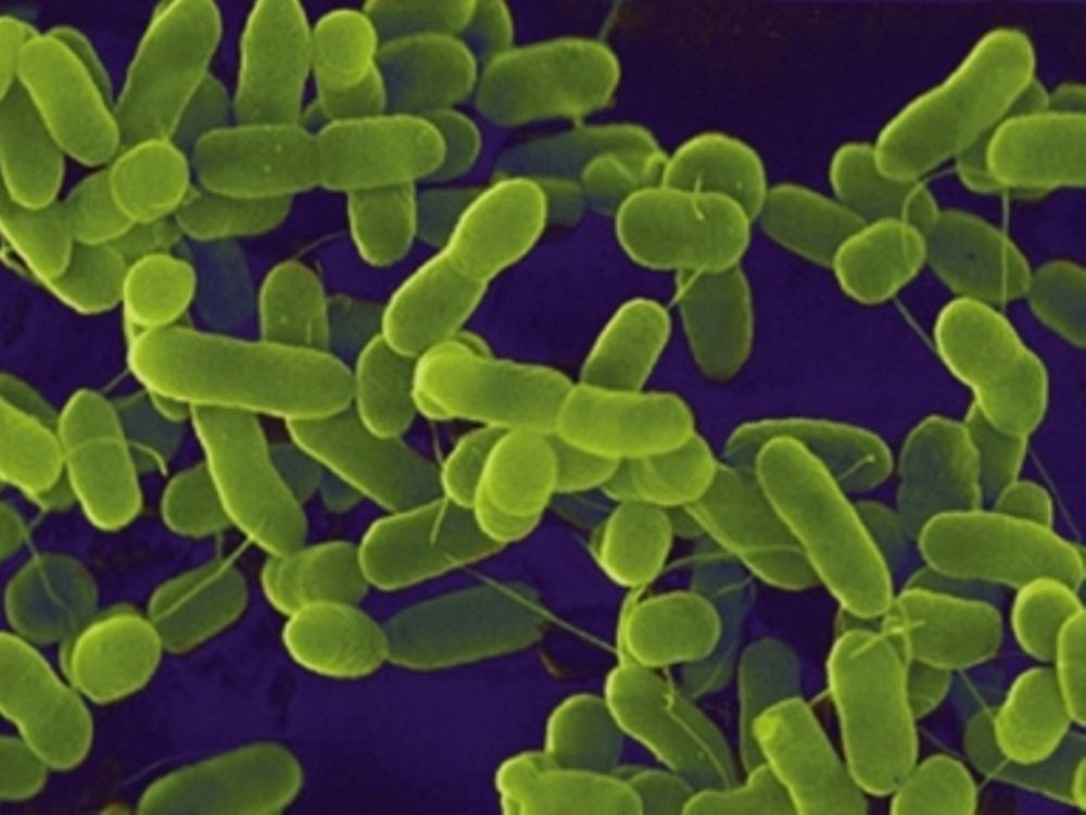 Το E-coli στην Ελλάδα