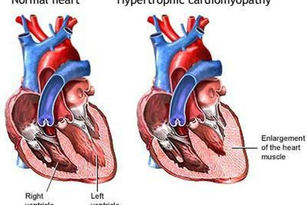 Αθλητική καρδιά