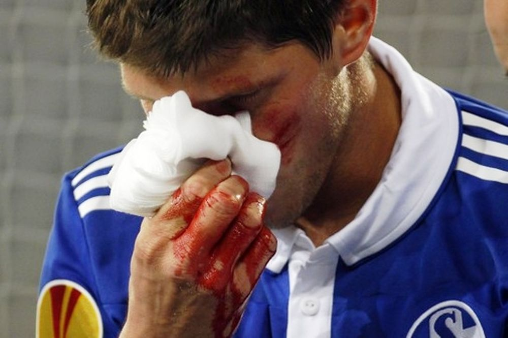 Σοβαρός τραυματισμός Χούντελαρ