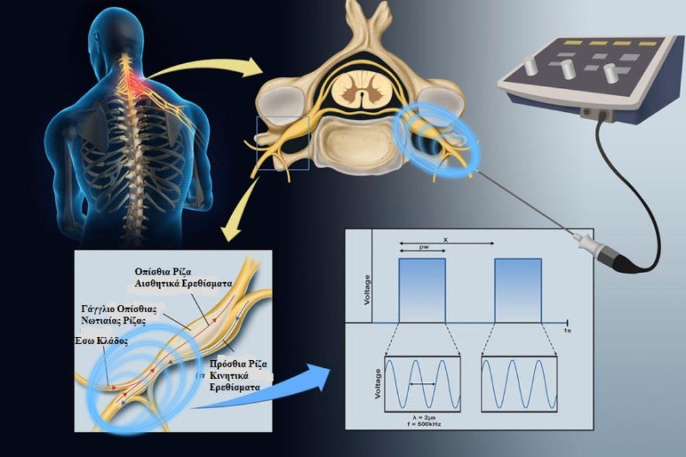 Θεραπεία Πόνου με Εφαρμογή Ραδιοσυχνότητας
