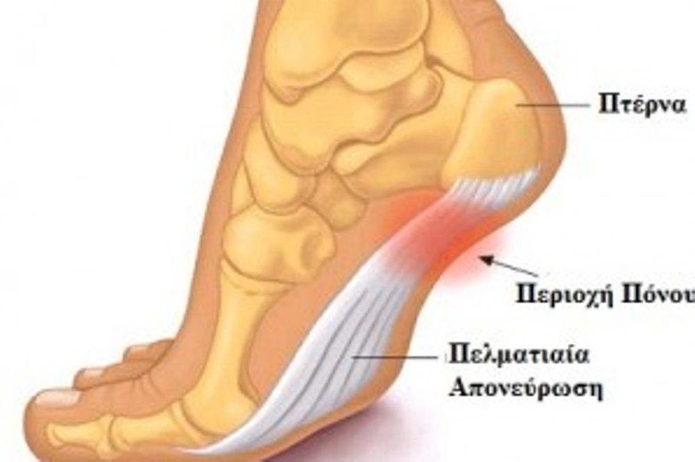 Πόνος στο Πέλμα- Πελματιαία Απονευρωσίτιδα