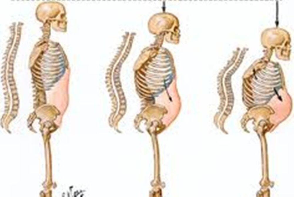 Οστεοπόρωση και διατροφή