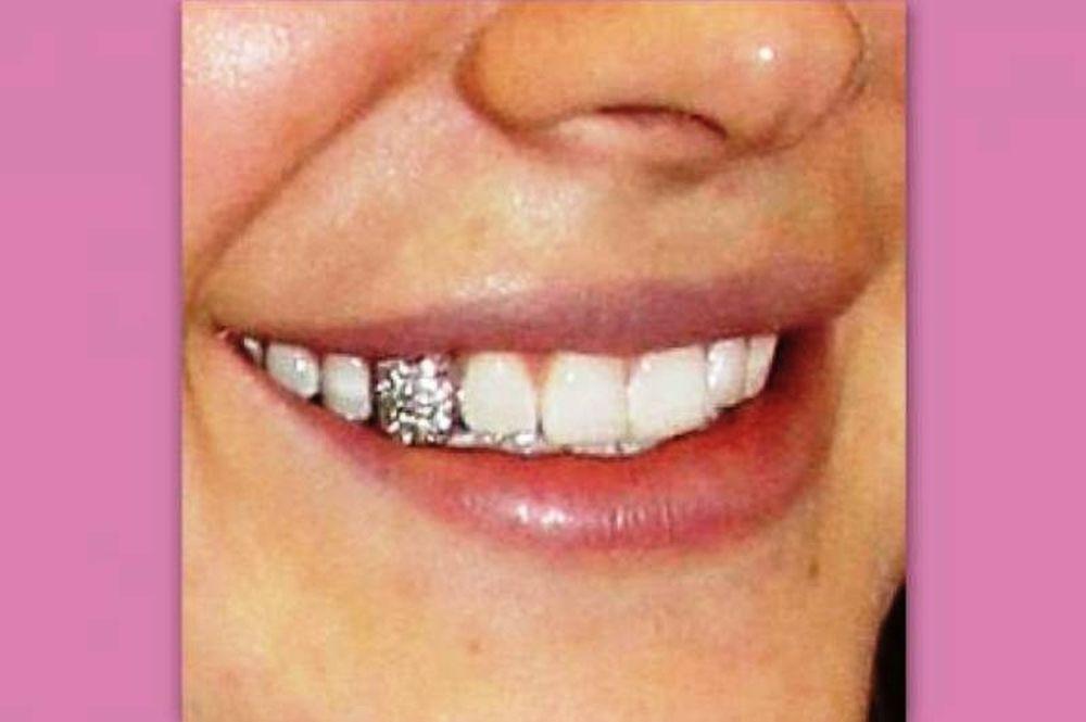 Το ιδιαίτερο χαμόγελο