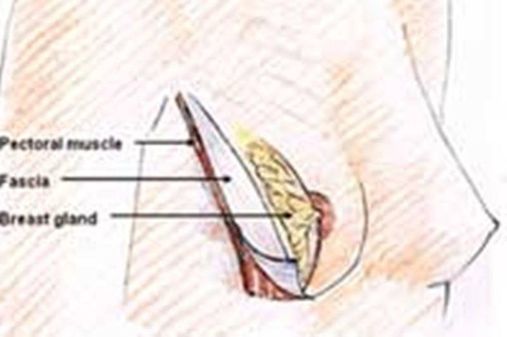 Αυξητική και Προσθετική Στήθους