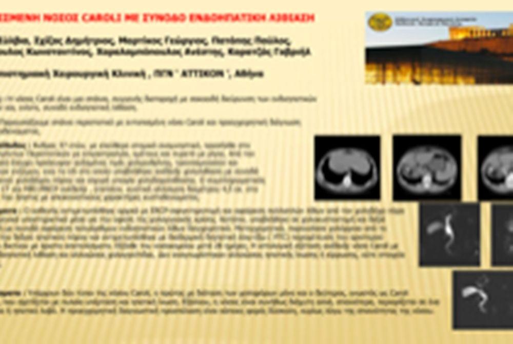 Εντοπισμένη νόσος CAROLI με συνοδό ενδοηπατική λιθίαση