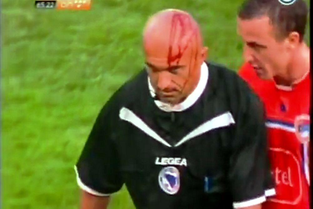 Τραυματίας επόπτης στη Σερβία (video)
