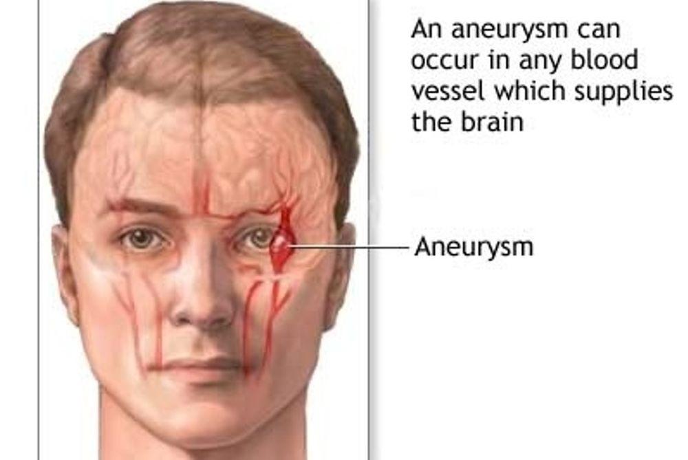 Θυρεοειδική οφθαλμοπάθεια