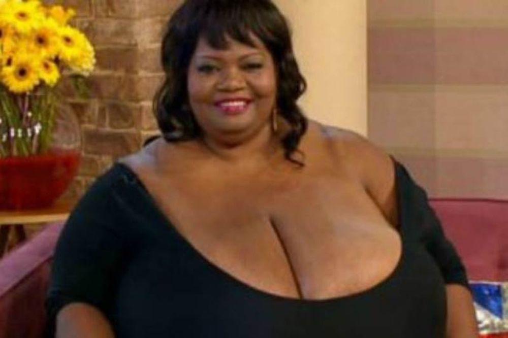 Η γυναίκα με το μεγαλύτερο στήθος στον κόσμο!