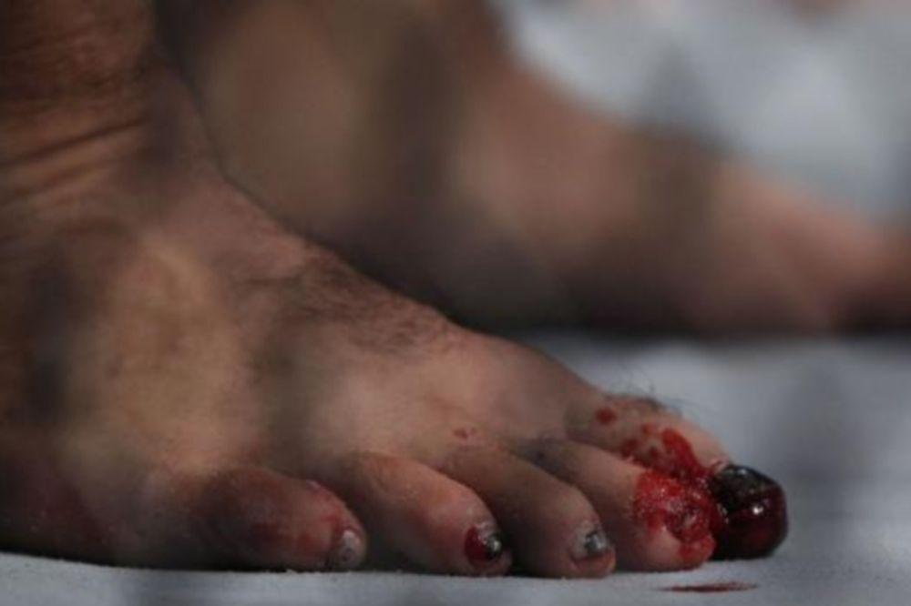 UFC: Τραυματισμός στο πόδι για Hunt