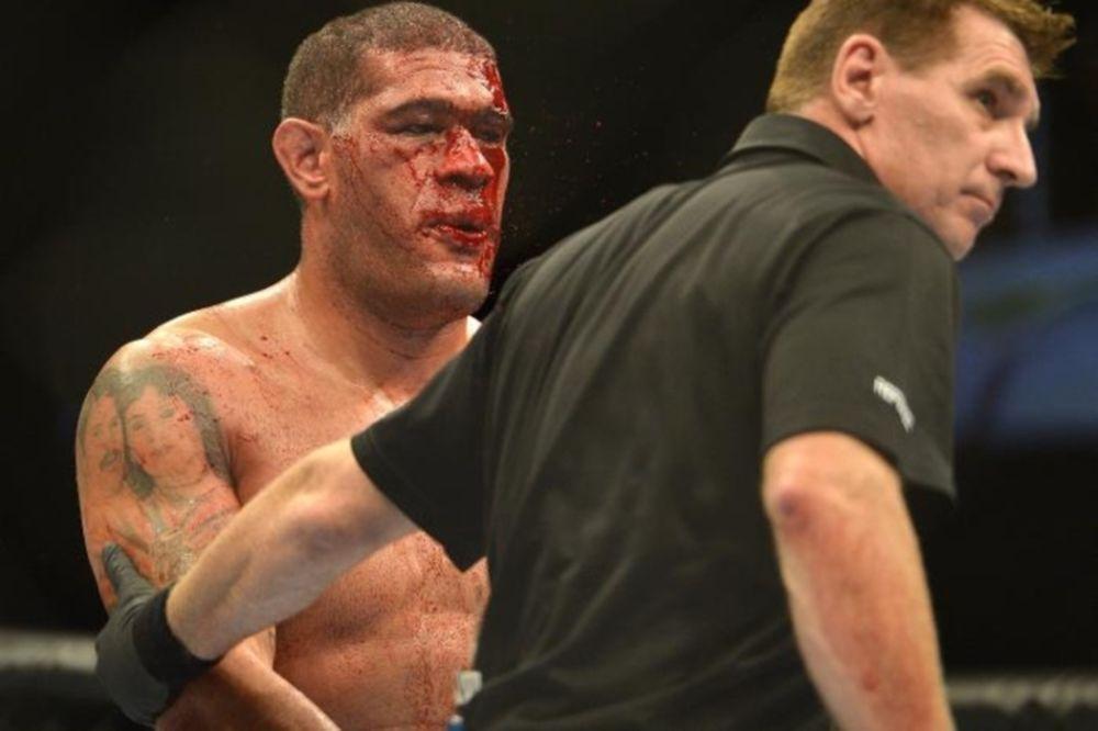 UFC: Κατηγορεί γιατρό ο «Bigfoot» Silva
