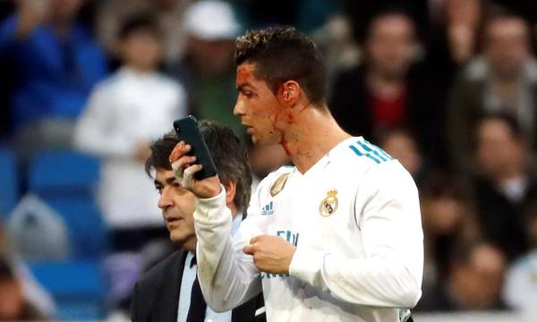 Θεός! Τραυματίστηκε ο Ρονάλντο και έβγαζε φωτογραφίες με το κινητό του γιατρού (photos+videos)