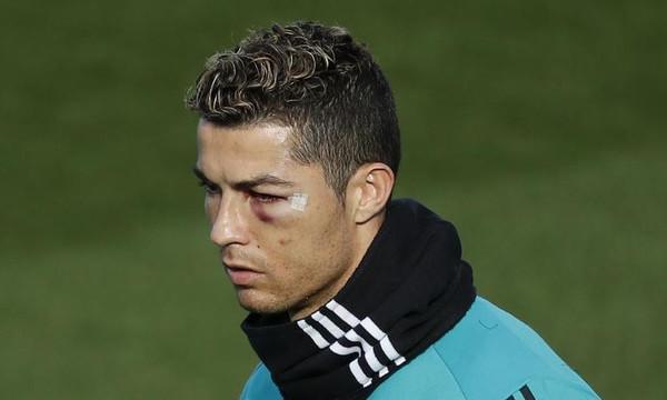 Με «πρησμένο» μάτι στην προπόνηση ο Ρονάλντο! (video)